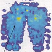 低反発ウレタン